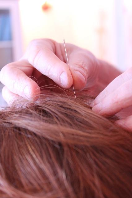 acupuncture-656578_640