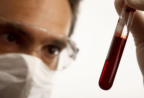 photolibrary_rm_photo_of_blood_analysis