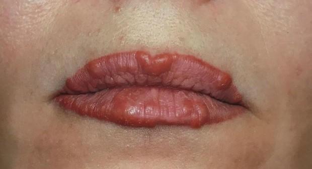 Опасна практика: слагат филъри, докато оправят зъби