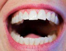 5 мита за здравите зъби