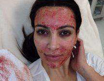 Вампирски лифтинг подмладява кожата със собствена кръв