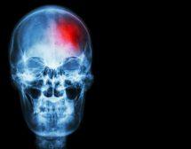 Как да разпознаем инсулт