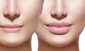 Подарете си… естествено изглеждащи устни!