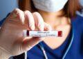 Нарастващите случаи на реактивиран вирус в Южна Корея пораждат безпокойство