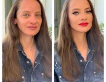 Как д-р Тончева освежи лицето на примабалерината Диляна Никифорова