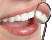 Не убивайте здрави зъби за красиви коронки