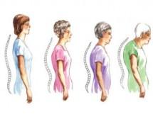 95 % от българите с остеопороза не се лекуват
